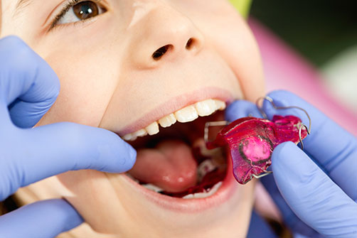 Orthodontics for Children, Vancouver
