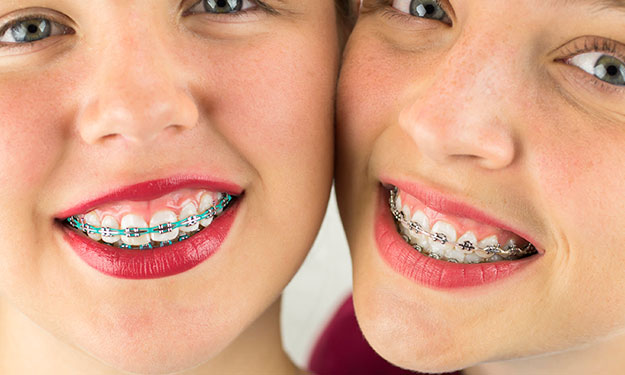 Coloured Braces, Vancouver Orthodontics