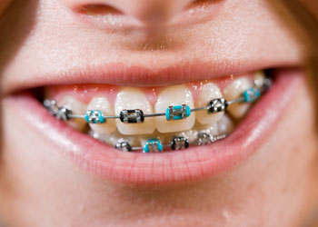 Coloured Braces, Orthodontics,  Vancouver