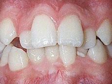 Crowding Teeth, Daher Orthostyle, BC