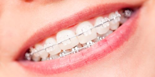 Braces in Vancouver