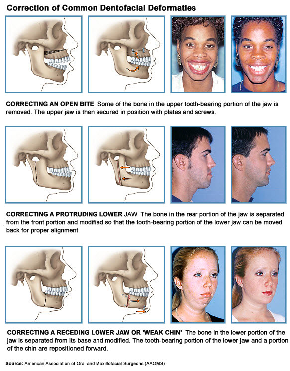 Dentofacial Orthodontic Surgery, Vancouver, BC