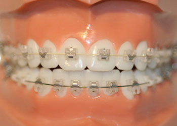In-Ovation Ultra-Precision Braces