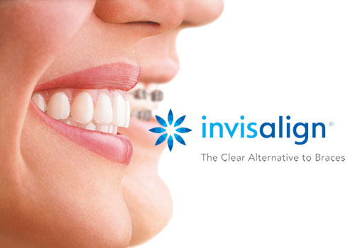 Invisalign for Adults, Vancouver