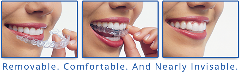 Invisalign Clear Braces, Daher Orthostyle