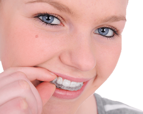 Invisalign for Teens, Vancouver Orthodontics