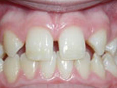 Missing Teeth, Daher Orthostyle, BC